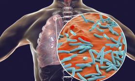 कोरोनामा केन्द्रीत हुँदा कोरोनाभन्दा डरलाग्दा रोगले महामारीको रुप लिने खतरा बढ्दै
