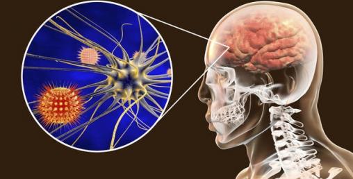 ''कोरोना भाइरस संक्रमितको ब्रेन ह्यामरेज र मेमोरी गुम्न सक्ने''